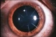 Wygląd rogówki oka po zabiegu korekcji wady wzroku RK (Kratotomia Radialna)