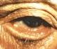 Ektropion (wywinięcie powieki)
