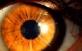 wygląd rogówki oka po zabiegu RK (Keratotomii Radialnej)