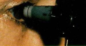 Przyrząd do diagnozowania jaskry - tonometr