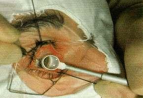 Diagnozowanie jaskry metodą gonioskopową