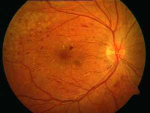 retinopatia cukrzycowa proliferacyjna